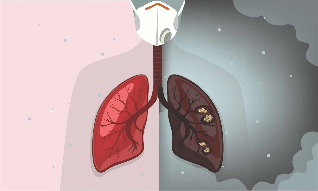 Ô nhiễm không khí ảnh hưởng đến sức khỏe