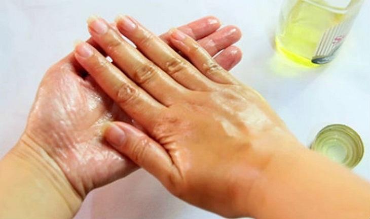 Cách xử lý khi bị dính nhựa mít vào tay