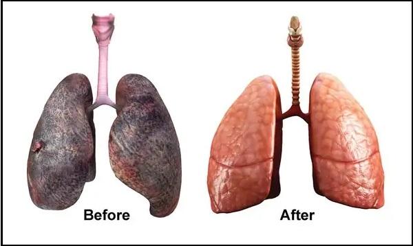 Có thể làm sạch phổi không?