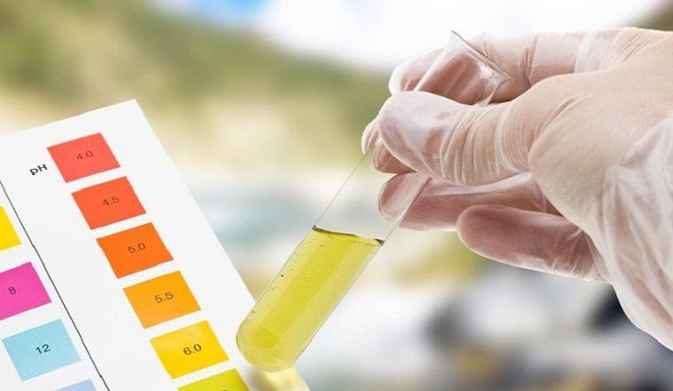Nhận biết tình trạng sức khỏe dựa trên màu sắc của nước tiểu