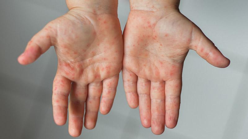 Bệnh tay chân miệng là gì? Dấu hiệu nhận biết ở trẻ?