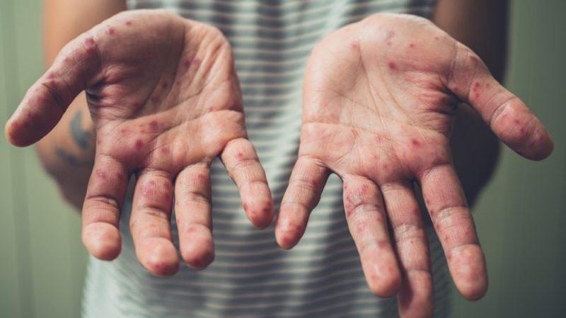 Bệnh tay chân miệng ở trẻ, khi nào thì nên nhập viện?