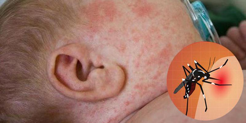 Các triệu chứng khi trẻ bị sốt xuất huyết