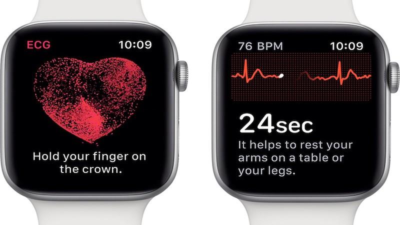 Apple Watch Series 6 sẽ có tính năng theo dõi oxy trong máu, phát hiện rung tâm nhĩ