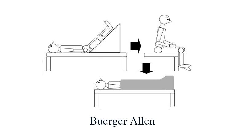Bài tập Buerger Allen hỗ trợ giảm suy giãn tĩnh mạch