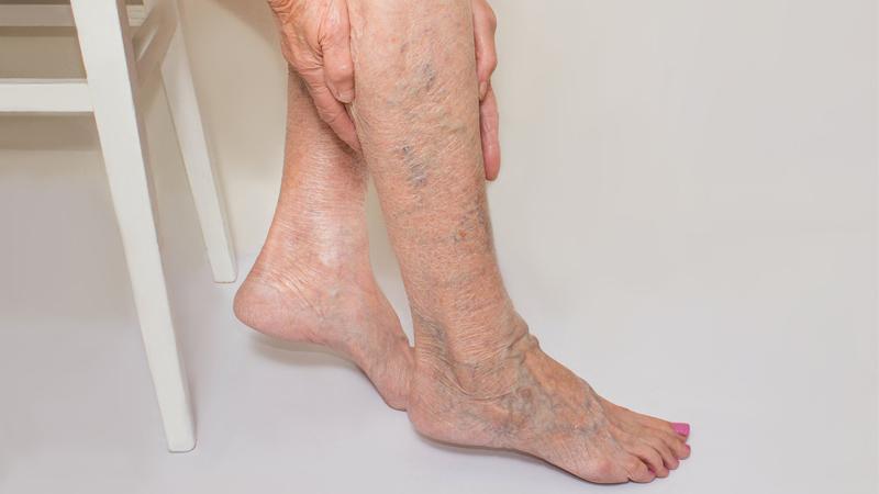 xoa bóp chân nhẹ nhàng giảm suy giãn tĩnh mạch
