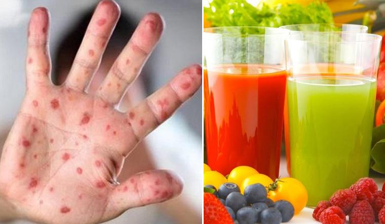 Dịch tay chân miệng bùng phát, bổ sung ngay cho trẻ những loại nước ép này để tăng sức đề kháng
