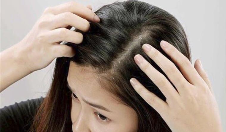 Có nên tẩy da chết cho da đầu?