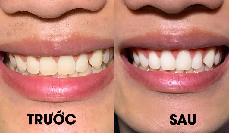 Chàng sinh viên chia sẻ cách làm trắng răng đơn giản bằng nguyên liệu nhà nào cũng có
