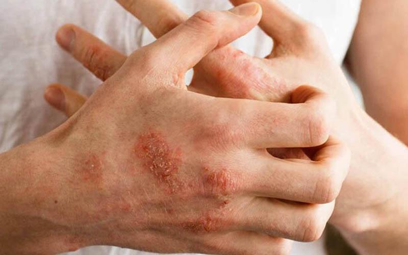 Viêm da và nhiễm trùng