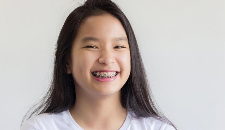 Cha mẹ nên cho con niềng răng từ mấy tuổi?