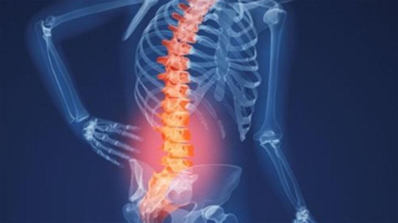 Ngăn ngừa và điều trị loãng xương