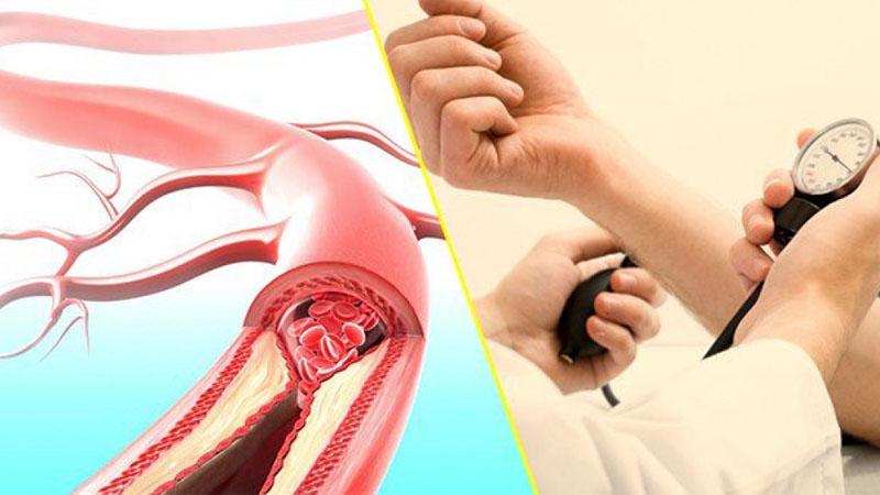 thừa muối có thể làm tăng nguy cơ mắc các bệnh về tim mạch và làm tăng huyết áp.
