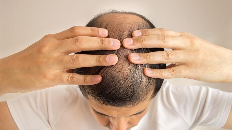 Những cách hạn chế rụng tóc