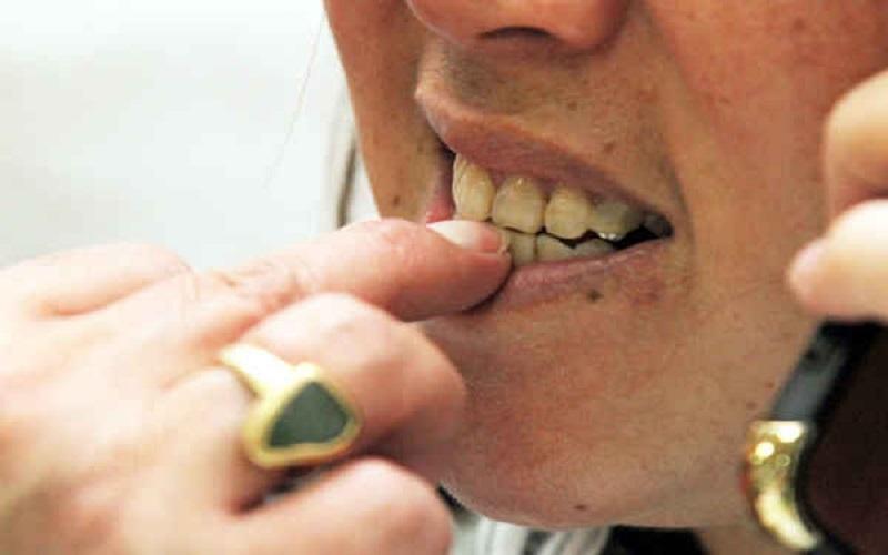 Cắn móng tay gây hỏng răng