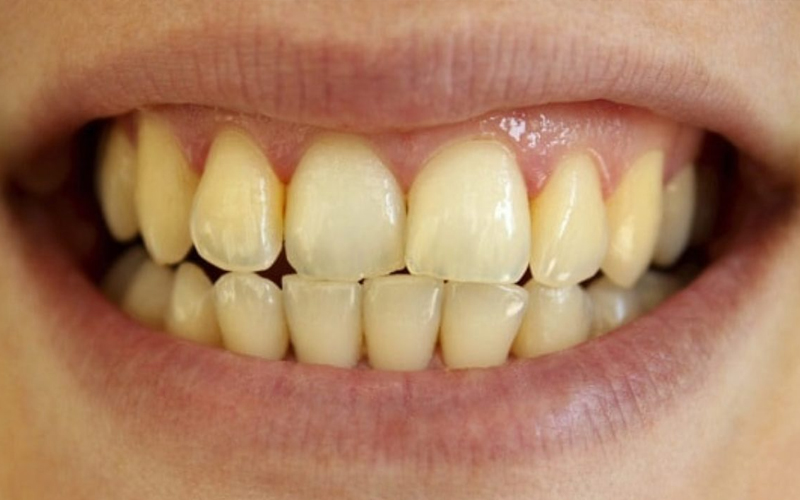 Tình trạng răng ố vàng