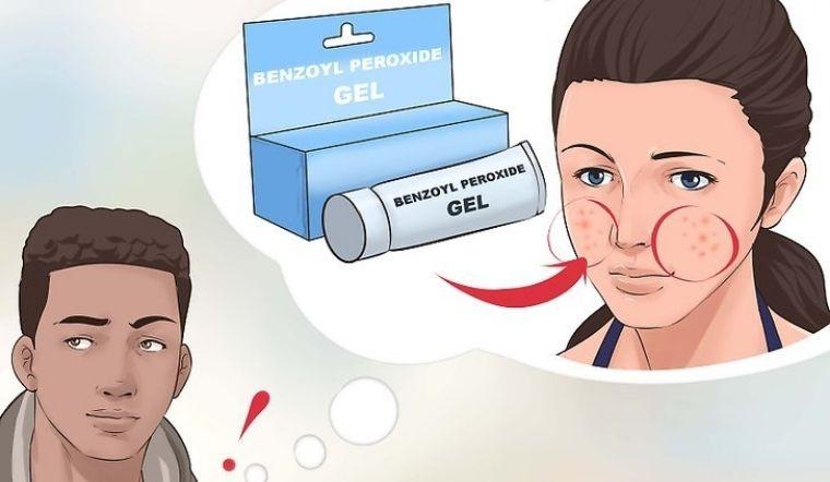Benzoyl Peroxide là gì? Những điều bạn nên biết về Benzoyl Peroxide