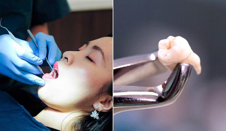 """Nghe bác sĩ giải đáp thắc mắc """"nhổ hết răng khôn có sao không?"""""""