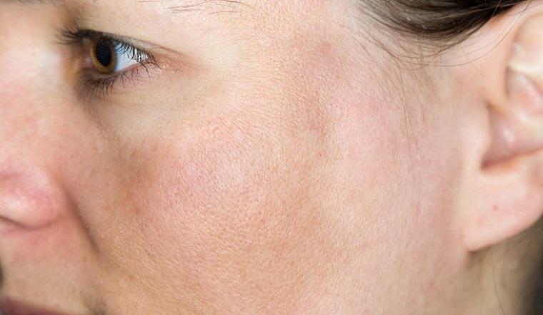 Tranexamic acid là gì? Sự thật về Tranexamic acid đối với làn da?