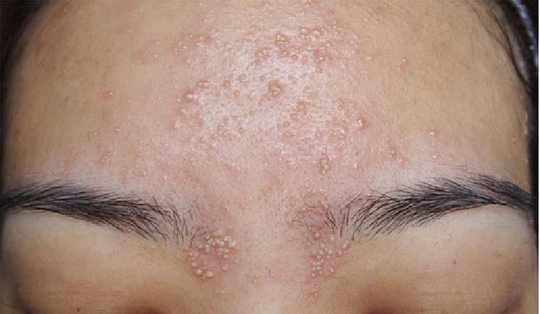 Cách trị mụn ẩn hiệu quả cho da khi dùng AHA/BHA