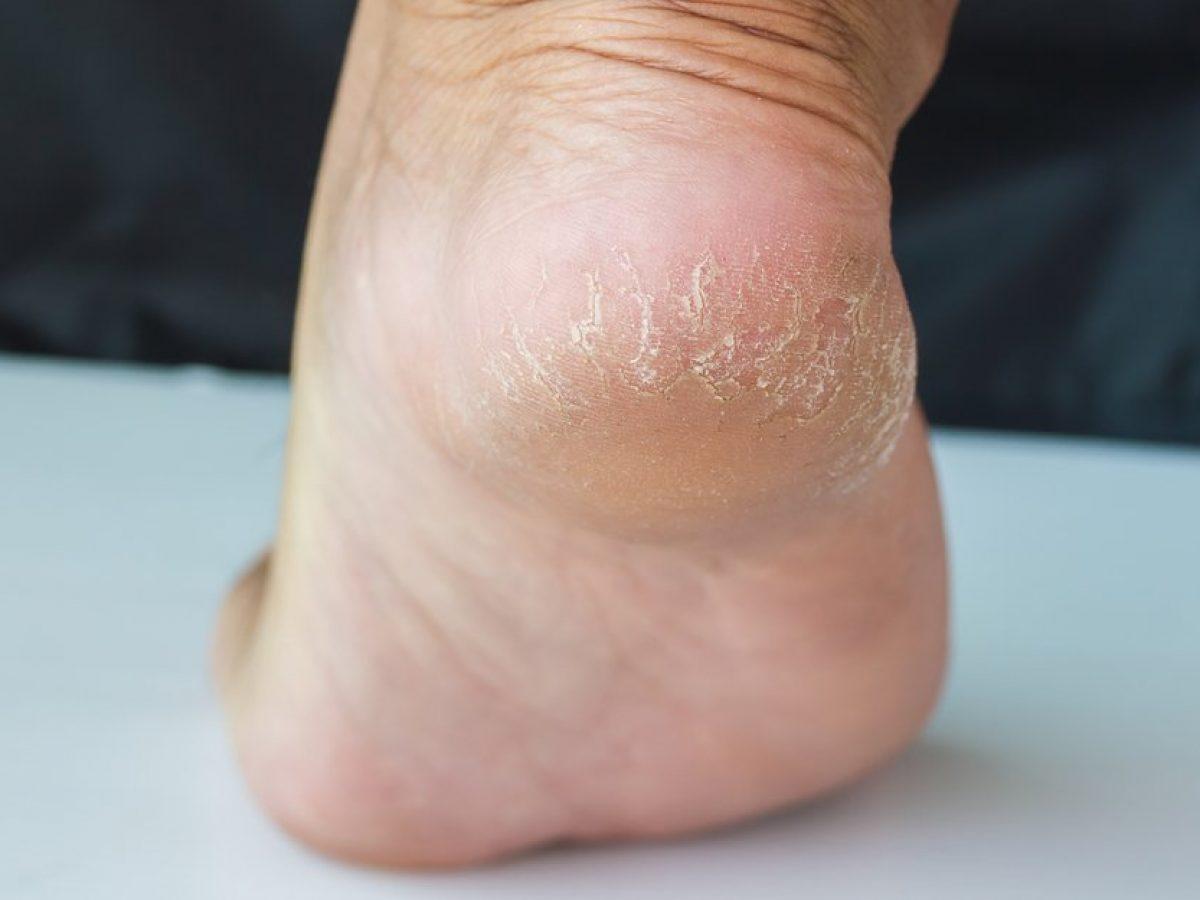 Vùng da gót chân dễ bị khô và nứt nẻ nếu không thường xuyên được chăm sóc