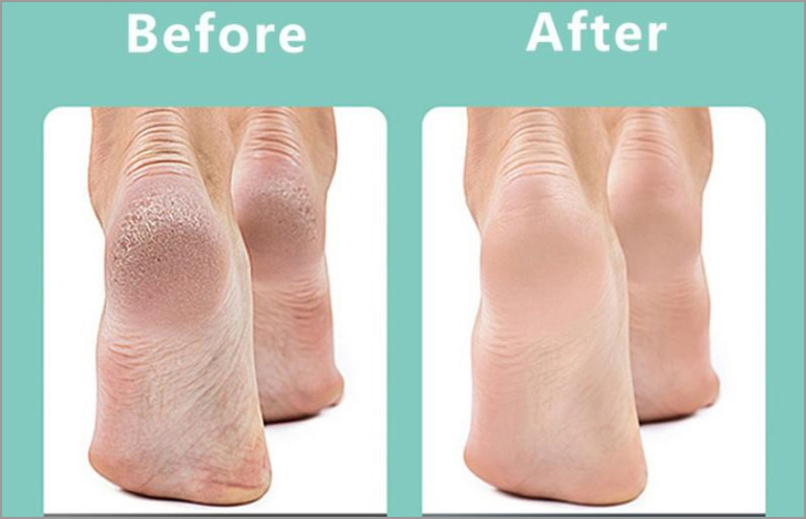 Làm sạch vùng da chết dễ dàng, đem lại làn da chân mịn màng