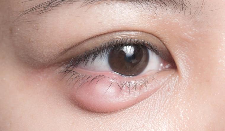10 mẹo chữa lẹo mắt đơn giản tại nhà, hiệu quả nhanh chóng