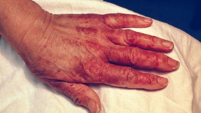 Tổn thương có thể phát triển theo kiểu phân bố giống hình găng tay trên bàn tay.