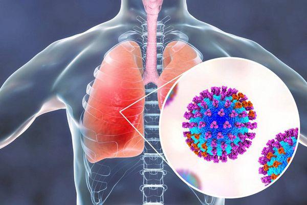 Hội chứng cơn bão cytokine xảy ra khi một tác nhân xâm nhập vào cơ thể