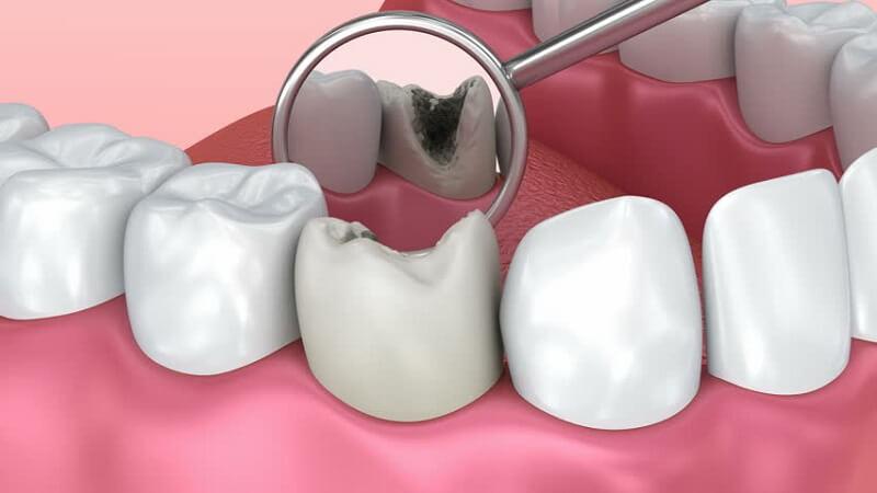Thiếu vitamin K2 làm răng trở nên yếu đi và dẫn đến tình trạng sâu răng