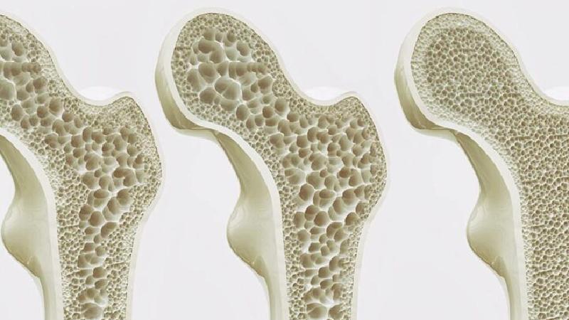 Nồng độ vitamin D cao có thể gây mất xương