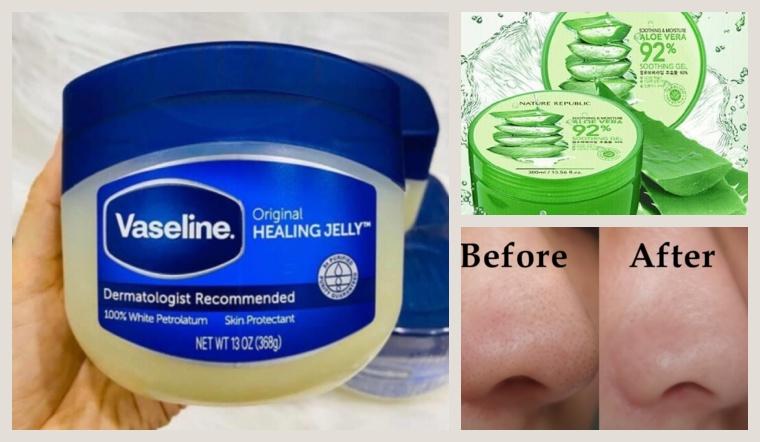 Đánh bay mụn đầu đen ở mũi chỉ với hỗn hợp gel nha đam và vaseline