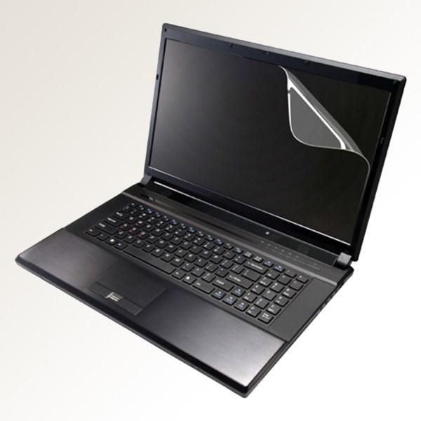 Miếng Dán Laptop 15 inch
