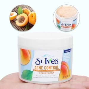 Sữa rửa mặt ngăn ngừa mụn ST.IVES chiết xuất trái mơ 283g
