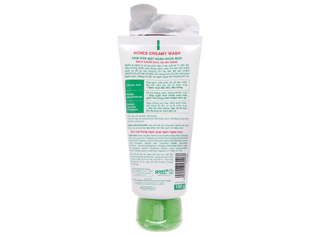 Kem rửa mặt Acnes ngăn ngừa mụn 100g 3