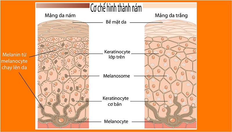"""Kết quả hình ảnh cho melamin trong da có ở đâu"""""""